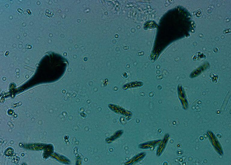 A variety of plankton seen through IBM's autonomous microscope